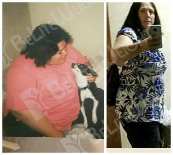 weight loss surgery vsg bariatric gastric bypass sleeve band before after
