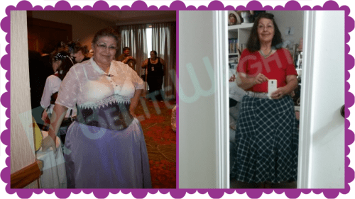 gastric sleeve before and after bariatric weight loss bypass band