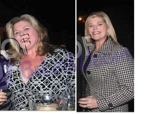 weight loss surgery vsg gastric sleeve