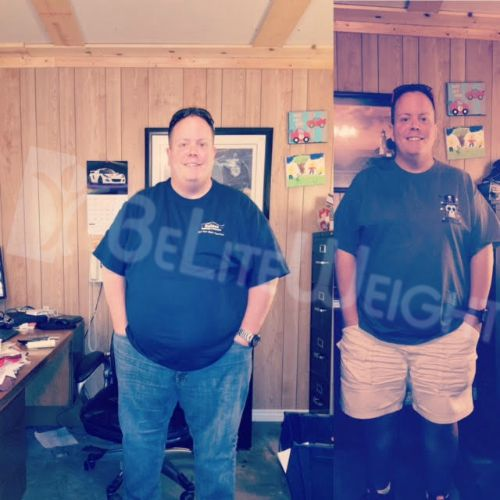 Gastric Sleeve Bariatric Surgery Before and After VSG Photos