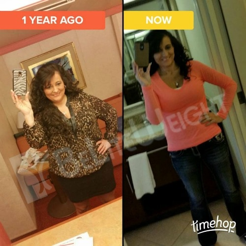 weight loss surgery vsg gastric sleeve before after photos testimonial revision after lap band