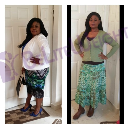 weight loss surgery before and after vsg vertical sleeve gastrectemy