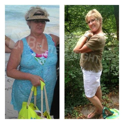 weight loss surgery before after bariatric vsg gastric sleeve bypass