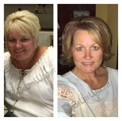 weight loss surgery vsg band sleeve gastric bariatric before after pictures