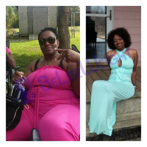 weight loss surgery vsg gastric sleeve vertical gastrectomy before and after