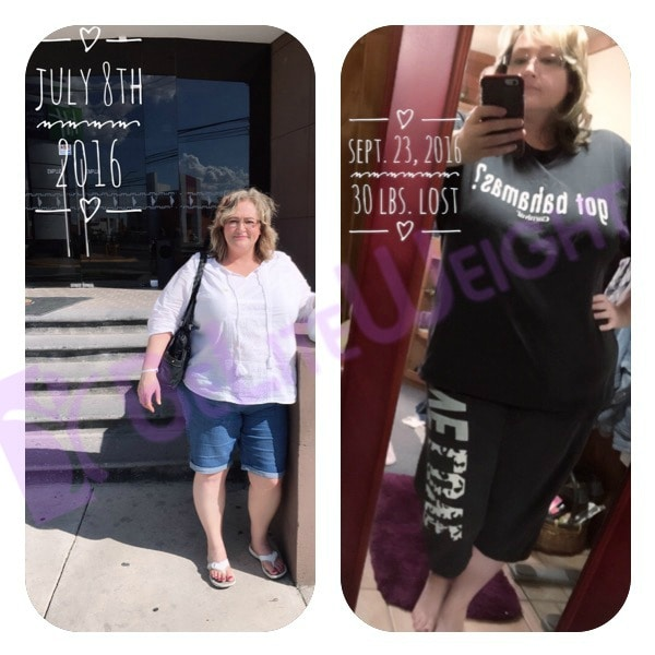 gastric sleeve before and after bypass bariatric weight loss vsg