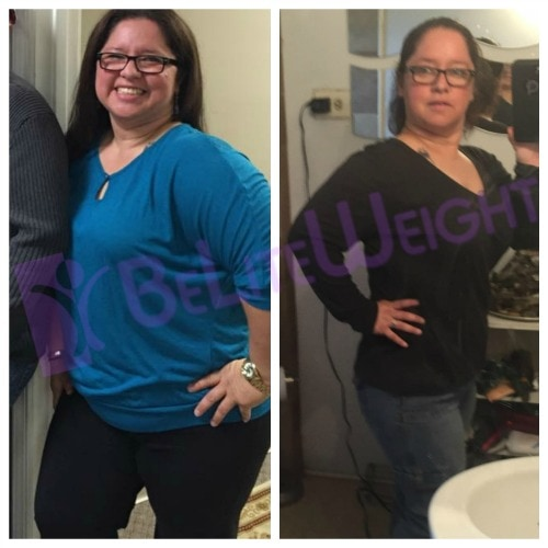 Weight loss surgery gastric bypass before after