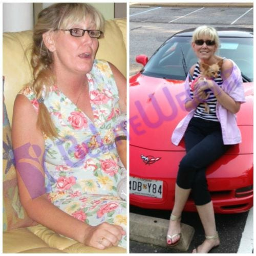 Gastric Sleeve VSG Before and After Photos Bariatric Surgery