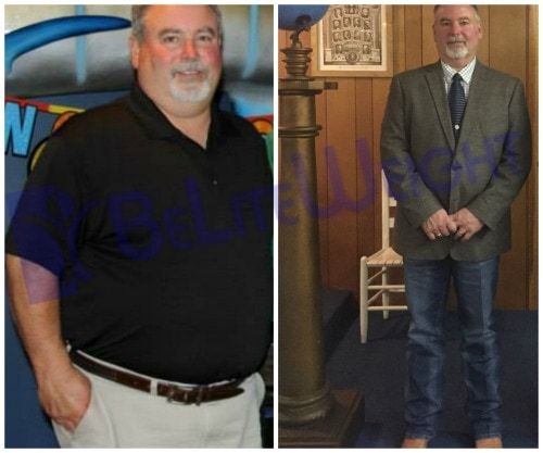 before and after vsg vertical gastric sleeve bypass lap band bariatric