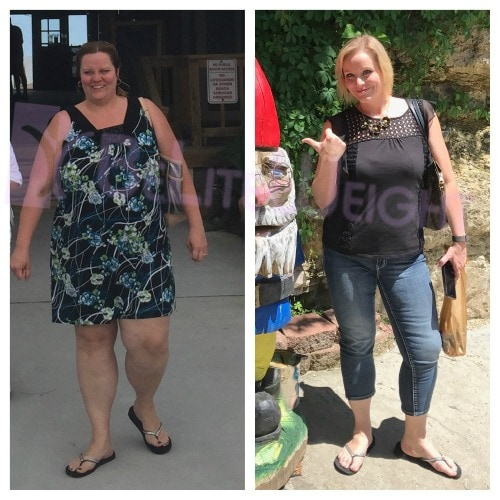 weight loss surgery before and after vsg