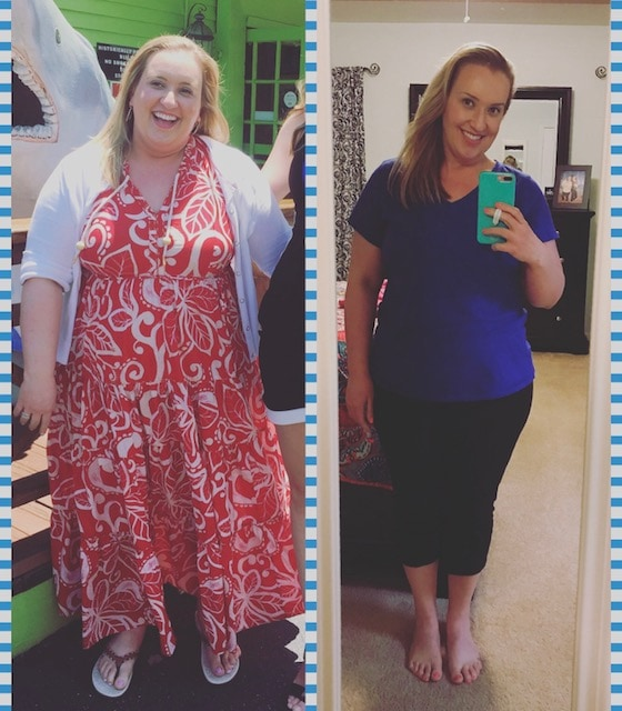 weight loss surgery before and after vsg vertical gastric band bypass