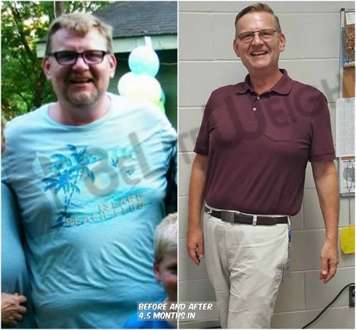 weight loss surgery bariatric before and after vsg band bypass