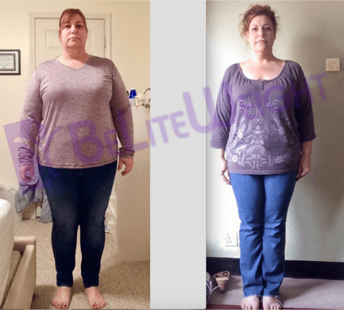 weight loss surgery before and after vsg gastric sleeve bypass