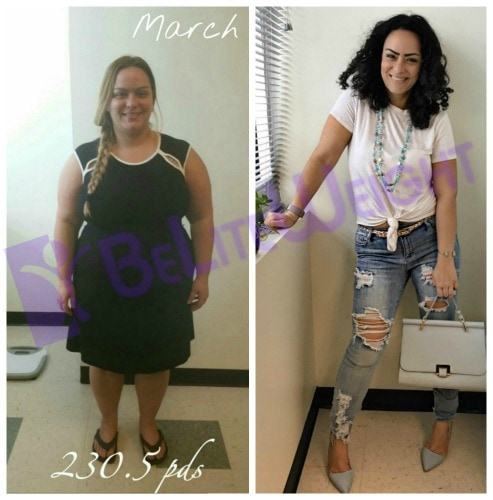 weight loss surgery before and after vsg gastric sleeve bypass weight loss band