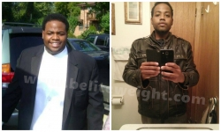 Gastric Band - Lap Band Before and After Photos