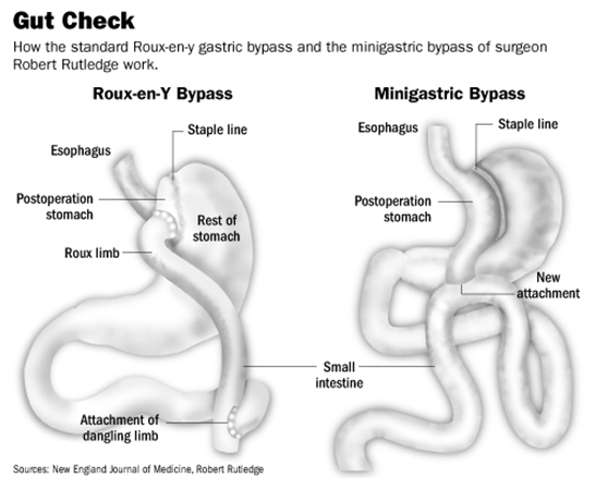 Mini Gastric Bypass vs Roux-en-Y Bypass