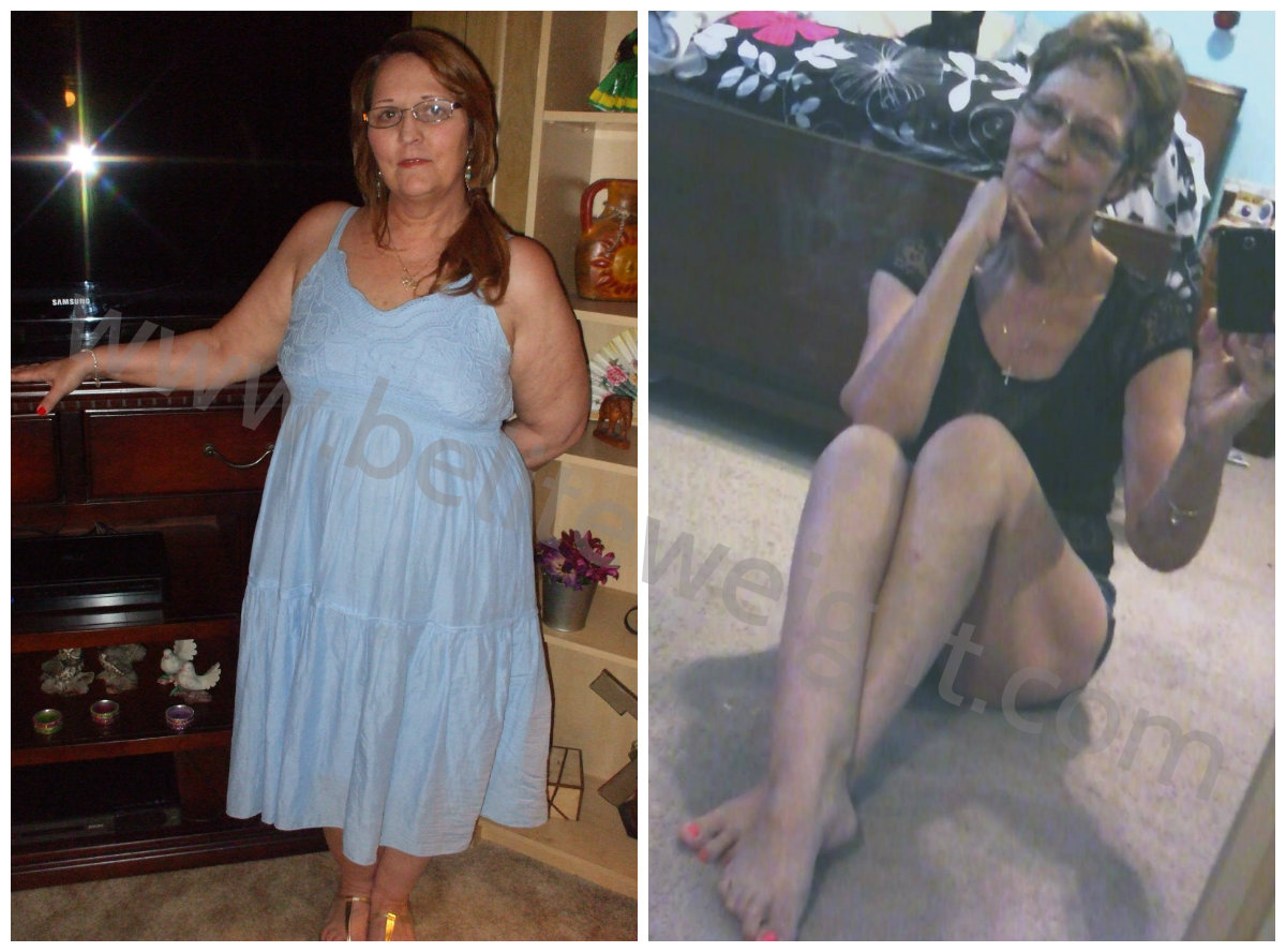 Medicare Paid Gastric Bypass Surgery - Brenda's Weight ...