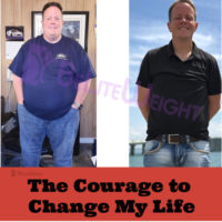 weight loss surgery before after vsg gastiric sleeve