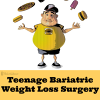 weight loss surgery before after vsg gastiric sleeve teenage bariatric surgery