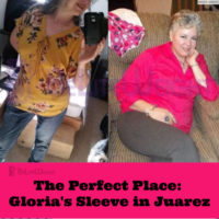 gloria before after juarez gastric sleeve weight loss surgery bariatric vsg