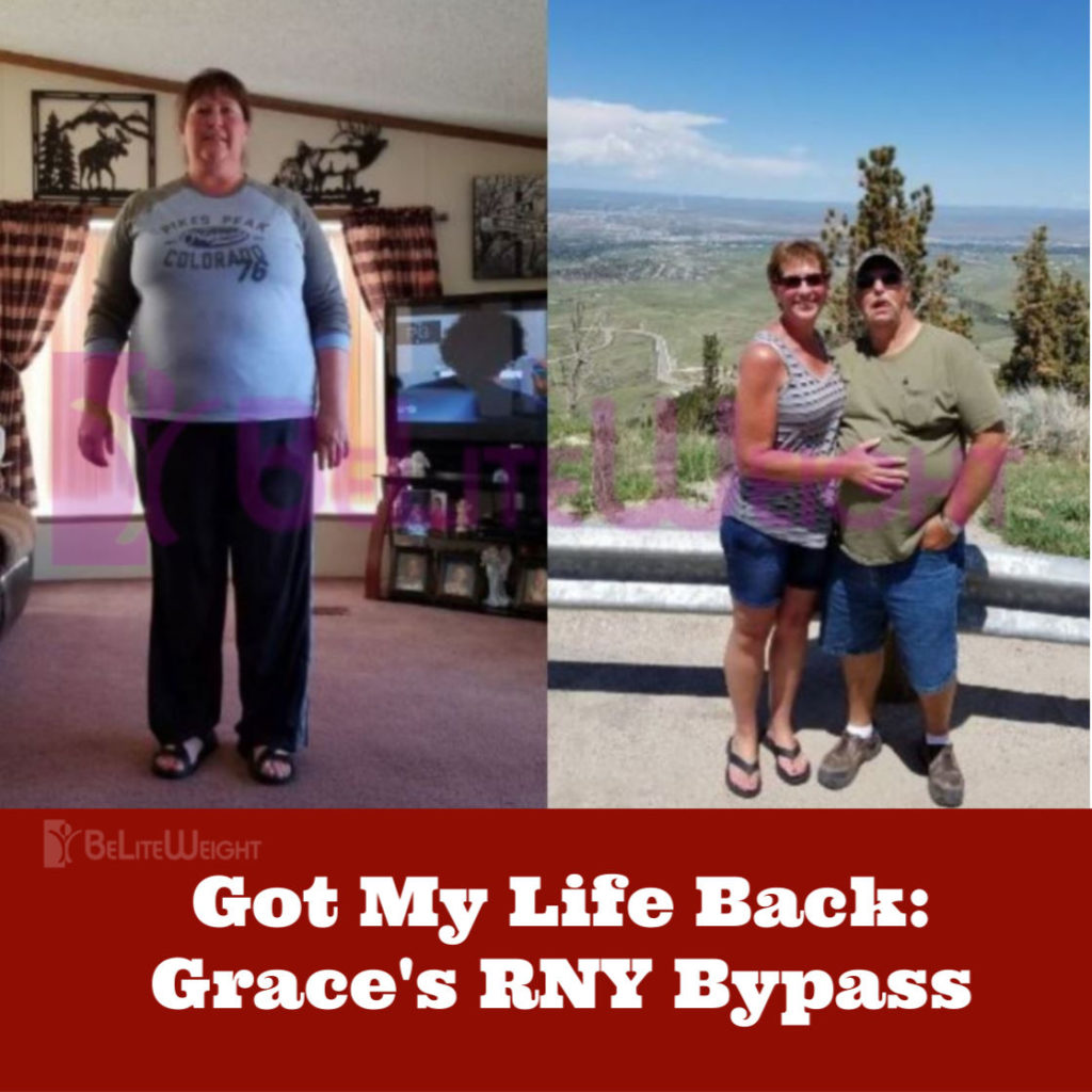 weight loss surgery before and after dionne gastric sleeve