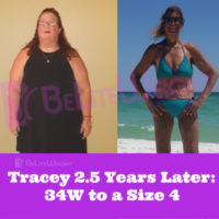Tracey T Weight Loss Surgery Before and After