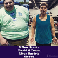 A New Start - David 3 Years After Gastric Sleeve