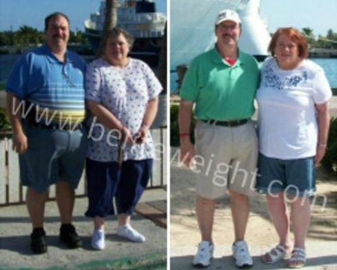 Gastric Sleeve Before and After Photos - Almost Divorced over Weight Loss Surgery | beliteweight.com