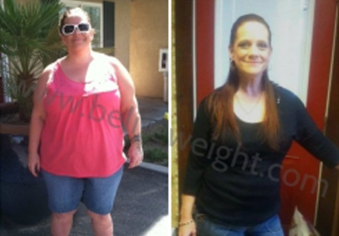 Wendy - Gastric Bypass Surgery