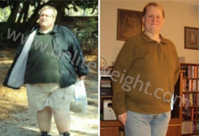 Gastric Sleeve Before and After Photos - Stephen\'s Story | beliteweight.com