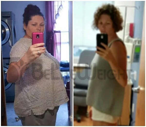 Gastric Sleeve Weight Loss Results