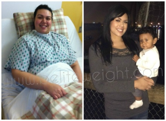 Gastric Sleeve Surgery Before and After Photos - VSG #wls #weightlosssurgery