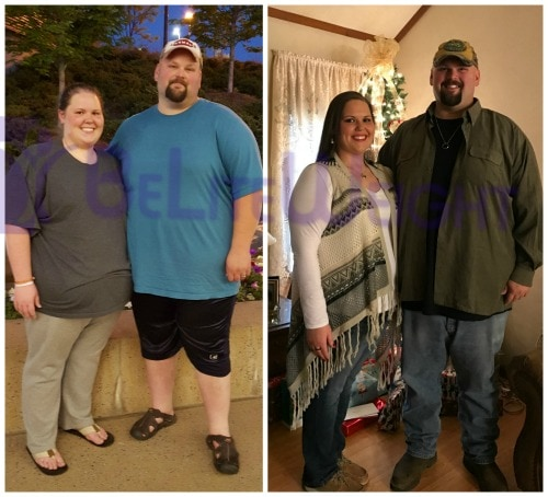 weight loss surgery before after vsg vertical gastric sleeve bypass band bariatric