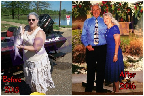 weight loss surgery before and after vsg vertical gastric sleeve