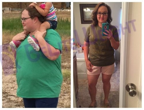 weight loss surgery before and after gastric bypass sleeve vsg