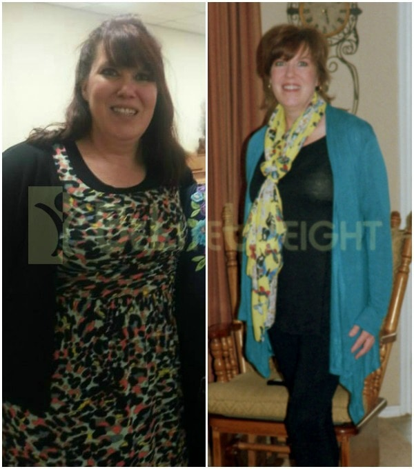 Julie Before and After Gastric Sleeve Surgery