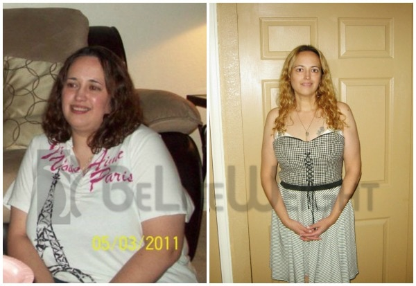 Liz - One Year After Weight Loss Surgery