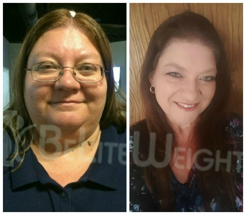 weight loss surgery vsg gastric sleeve bypass band before and after