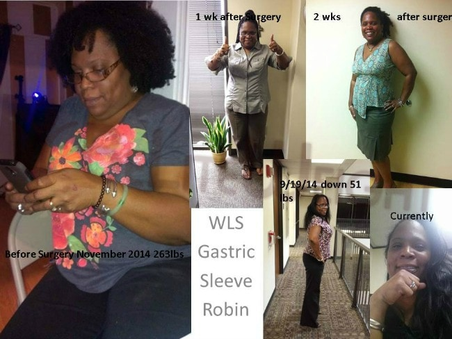 Gastric Sleeve Surgery Before and After Weight Loss