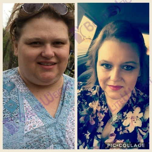 weight loss surgery vsg before and after revision lap band to gastric sleeve