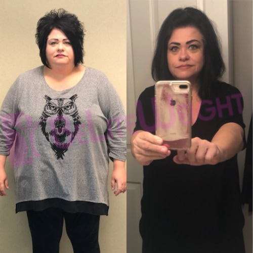 Tina W - 1 year after Gastric Bypass