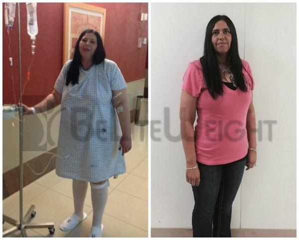 VSG - Vertical Sleeeve Gastrectomy