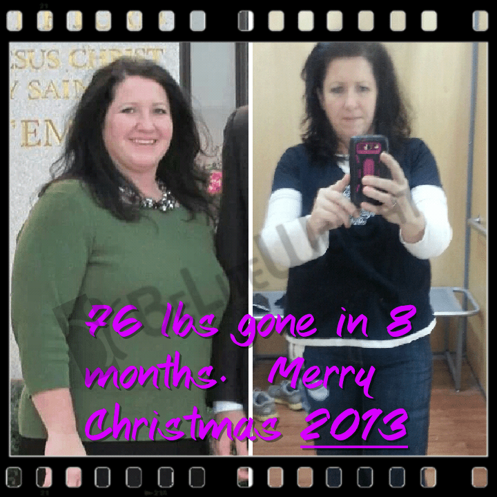 78 pounds lost in 8 months- Before and after weight loss surgery | #wls #weightlosssurgery #vsg