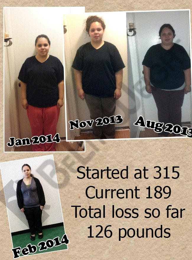 Ashley - 126 pound weight loss after having Weight Loss Surgery