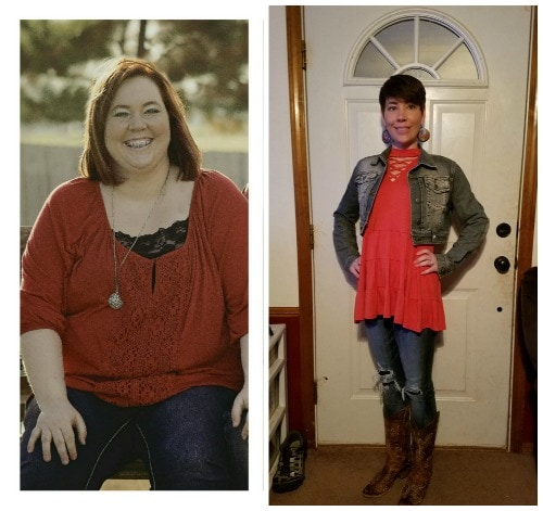 weight los ssurgery before and after gastric bypass