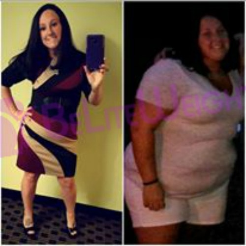 weight loss surgery success story before and after vsg sleeve bariatric