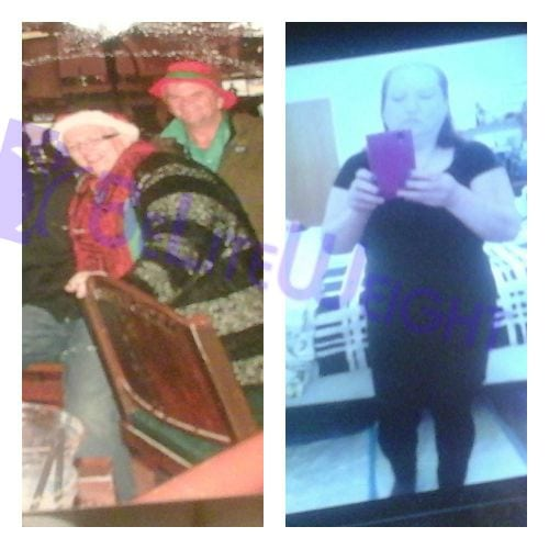 VSG Weight Loss Sleeve Before and After Photos