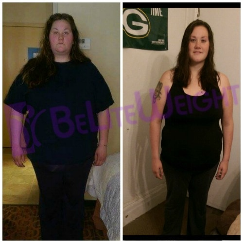 gastric bypass vsg surgery weight loss