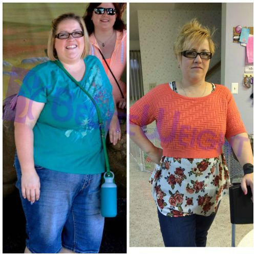 VSG Weight Loss Gastric Sleeve Photos