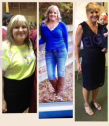 weight loss surgery vsg gastric sleeve before after photos testimonial